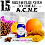 List of Best Essential Oils for Acne & How to Use