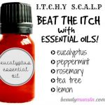 Don't Scratch! Essential Oils for Itchy Scalp Relief