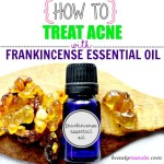 Frankincense Essential Oil for Acne