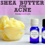 Homemade Remedy Using Shea Butter for Acne