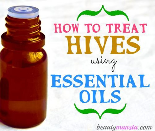 Here are 5 of the best essential oils to treat hives plus effective recipes that really work in soothing & calming those itchy hives!