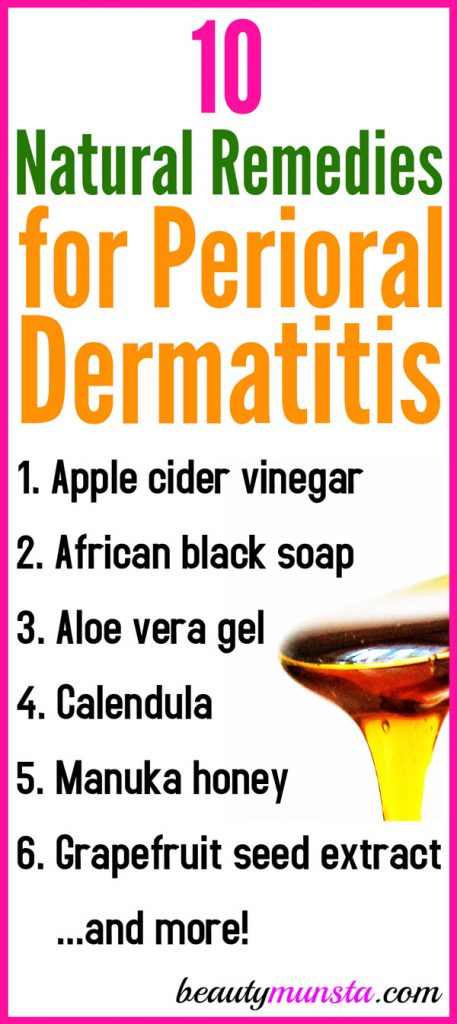 Here are some of the best natural remedies for perioral dermatitis to reduce flare-ups and get PD under control once and for all!