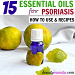 List of Best Essential Oils to Treat Psoriasis & Recipes