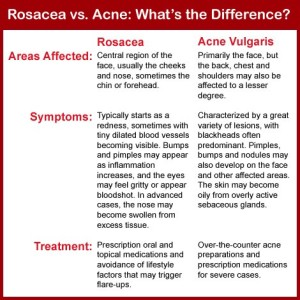 How to tell if you have rosacea or acne!