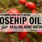 Is Rosehip Oil Good for Acne?
