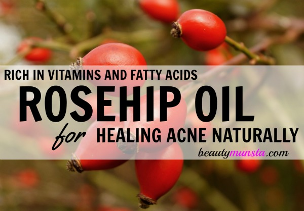 Is rosehip oil good for acne? Find out in this informative post!
