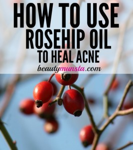 How to Use Rosehip Oil for Acne
