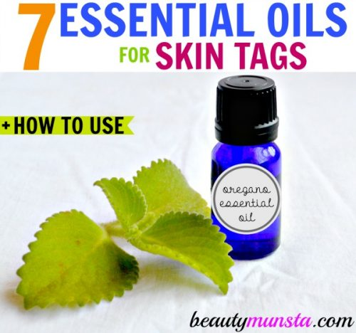 Essential oils for skin tags removal. Get rid of skin tags fast - the natural way!