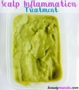 I used this DIY scalp inflammation treatment and it gave me instant relief by cooling and soothing my painful scalp!