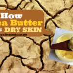 Is Shea Butter Good for Dry Skin?