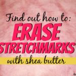 Can Shea Butter Remove Stretch Marks?