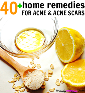 40 + DIY Acne Remedies That Work! (Including Pimples, Acne Scars & Blemishes)