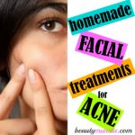 Top 3 Homemade Face Treatments for Acne