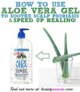 Aloe Vera on Scalp Psoriasis | Does it Work?