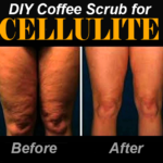 Review: Coffee Scrub for Cellulite Before and After