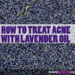 Lavender Oil on Acne | Benefits, Effectiveness & Application
