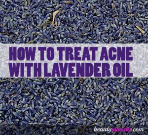 Lavender Oil on Acne | Benefits, Effectiveness & Application