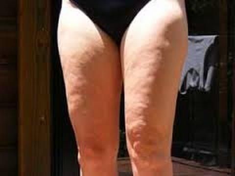 legswithcellulite