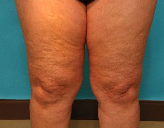 legs with cellulite