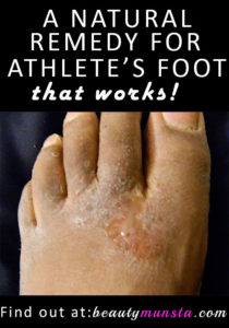 Try This Natural Homemade Athlete's Foot Remedy That Works!