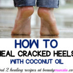 How to Use Coconut Oil for Cracked Heels