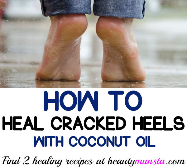 coconut oil for cracked heels