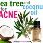 Tea Tree Oil and Coconut Oil for Acne – How to Use with 3 Recipes