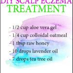 DIY Eczema Scalp Treatment