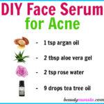 Homemade Face Serum for Acne