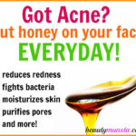 How to Use Manuka Honey for Acne