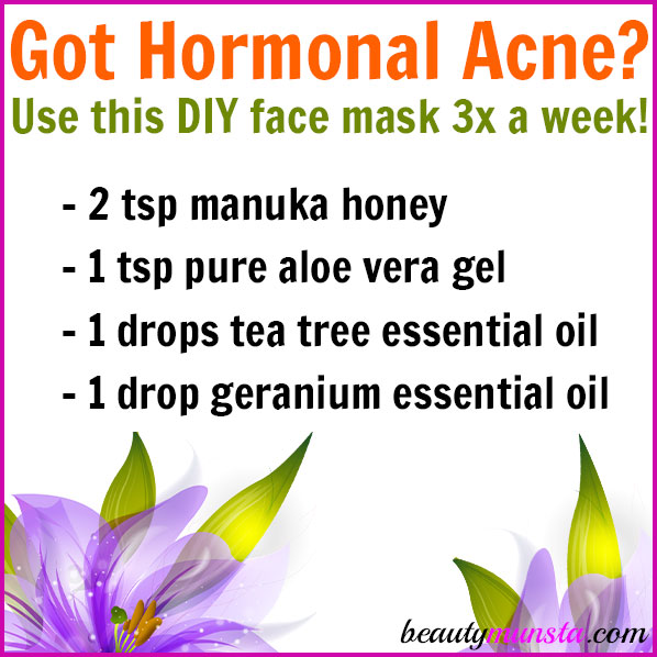 Make this DIY face mask for hormonal acne! It is cleansing, soothing and balances out excess sebum!