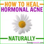 DIY Hormonal Acne Treatment Protocol using Natural Ingredients
