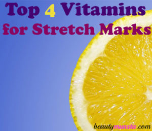 Top 4 Vitamins to Prevent Stretch Marks