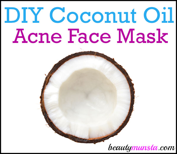 Find out how to make an easy and effective DIY coconut oil face mask for acne prone skin here!