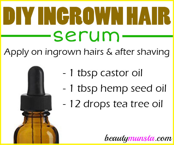 Try this DIY ingrown hair serum if you're constantly plagued by those pesky little ingrown hairs