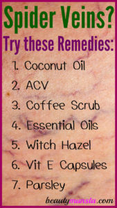 7 Natural Remedies for Spider Veins