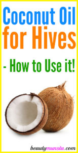 Does Coconut Oil Help with Hives?
