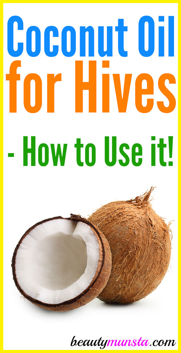 Does coconut oil help with hives? Or do nothing? Or make it worse?! Find out in this post!