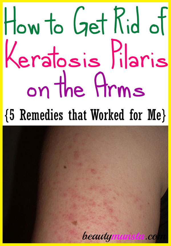 How to Get Rid of Keratosis Pilaris on Arms - beautymunsta - free
