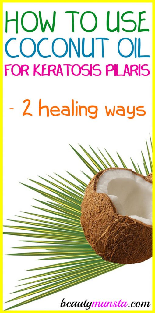 Learn how to use coconut oil for keratosis pilaris as a natural remedy!