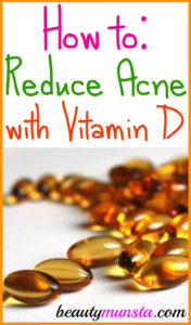 Is Vitamin D Good for Acne?
