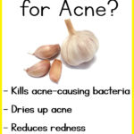 6 Garlic Benefits for Acne