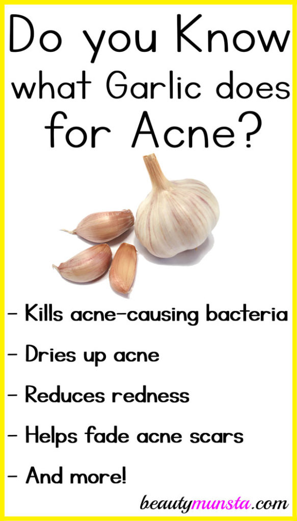 Garlic doesn't just keep vampires away! Discover 6 amazing garlic benefits for acne to get clearer skin faster!