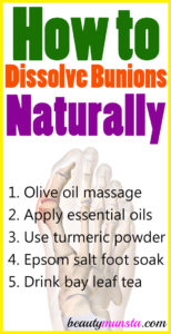 How to Dissolve Bunions Naturally