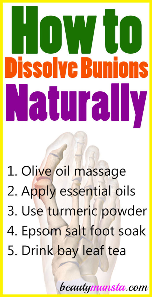 Get to know how to dissolve bunions naturally with 5 natural remedies!