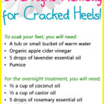 Overnight Remedy for Cracked Heels