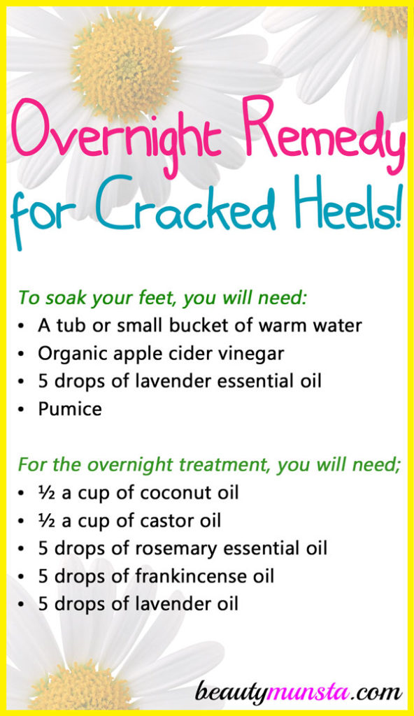 Day time remedies won't work so try this overnight remedy for cracked heels, instead!