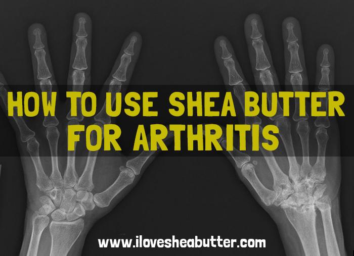shea butter for arthritis