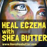 Homemade Shea Butter Lotion for Eczema