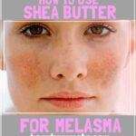 How to Use Shea Butter For Melasma